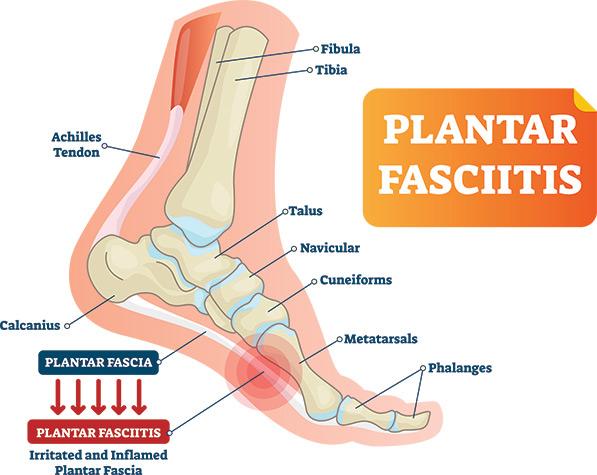 plantar-fasciitis